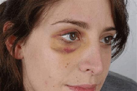 Бывший муж избил жену что ему грозит
