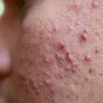 चर्म रोग : फोड़े -फुंसियो का घरेलु उपचार (pimple hatane ke gharelu upay)