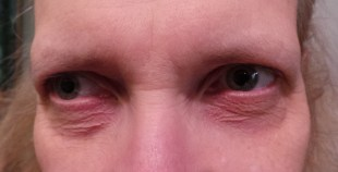 K. Novak Eyebrows - Before