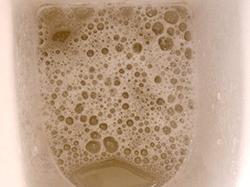 尿の泡-異常1