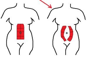 illustration of abdominal separation due to diastasis recti