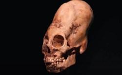 長い頭蓋骨の謎が判明?ハンガリーの村がローマ帝国崩壊後の人々を受け入れていた