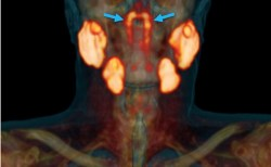 人体に未知の臓器が見つかる、オランダ癌研究所が鼻の奥に大きさ3.5cmの腺を発見