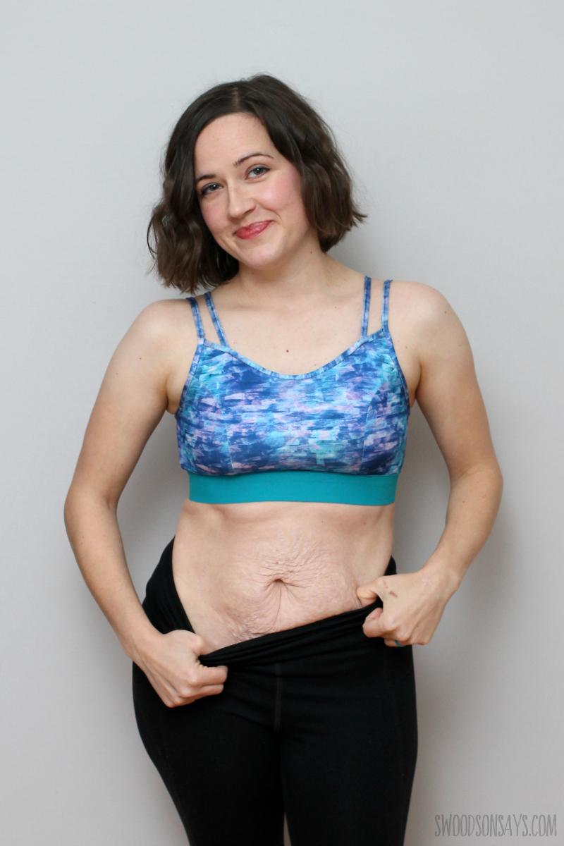 stretch marks stomach