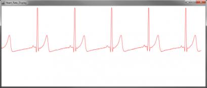 HeartRate_Normal