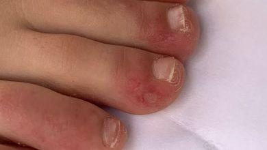 صورة بسبب فيروس كورونا: طفوح جلدية تحيّر الأطباء حول العالم