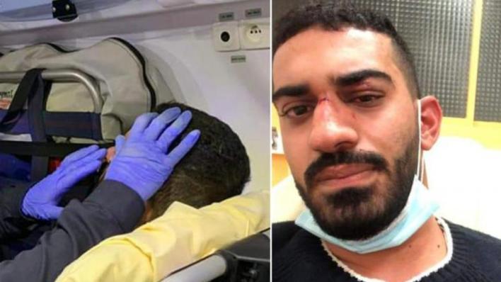 الشاب محمد أبو عيد تلقى ضربات خلّفت جروحاً