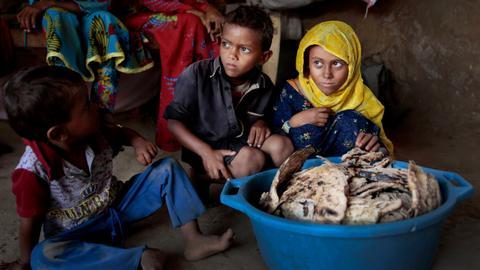 1605881704 9583210 5049 2843 5 549 - في يوم الطفل العالمي.. منظمة حقوقية تعلن مقتل 5700 طفل في اليمن بسبب الحرب