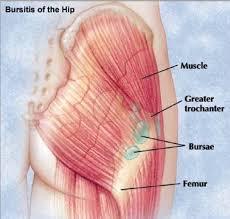 Bursitis diagram