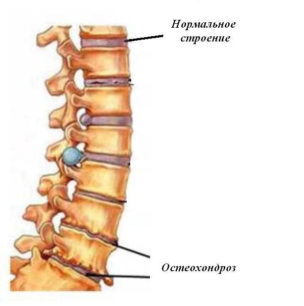tratamentul osteochondrozei preparatelor lombosacrale ale coloanei vertebrale)