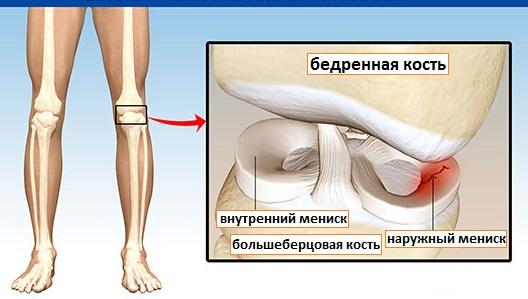Что такое блокировка коленного сустава как ее снять и что делать
