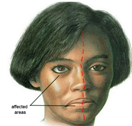 Ramsay Hunt Syndrome - Pictures, Symptoms, Treatment ...