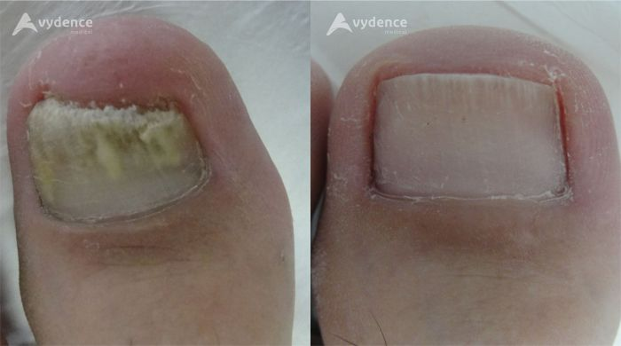Nail Fungus Before and After