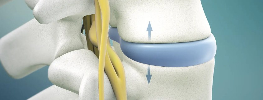 Herniated Disc Treatment in Naperville