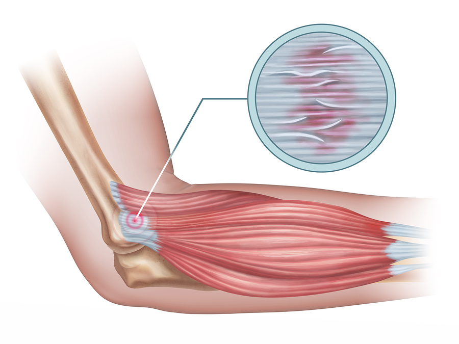 Tennis elbow diagram showing a detail of the damaged tendon tissue