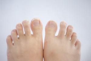 外反母趾の種類