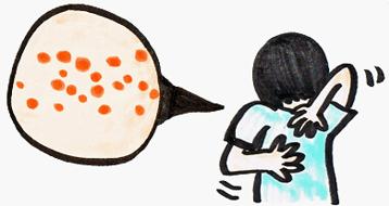 蕁麻疹でかゆい!みみずばれなど症状や原因・対処法は?