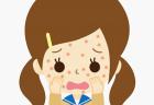 蕁麻疹が治らない!子供や赤ちゃんの原因や薬など対策は?