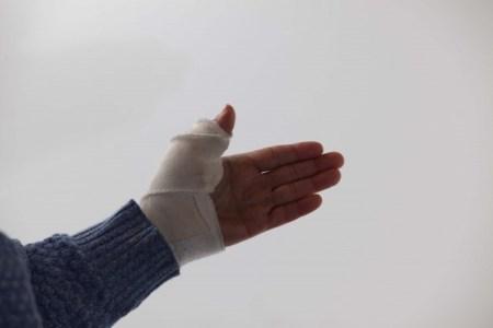 骨折による手術の時間や費用と術後のリハビリや痛みについて