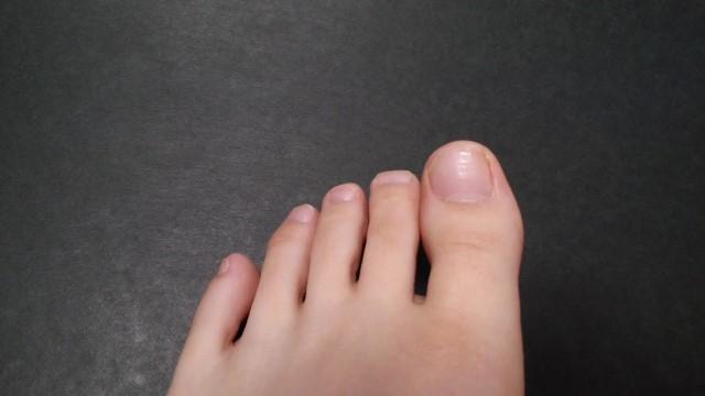 内反小趾の原因や治し方【靴・サポーター・テーピング・手術】