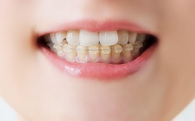 酸蝕歯の原因や症状・治療・予防法について