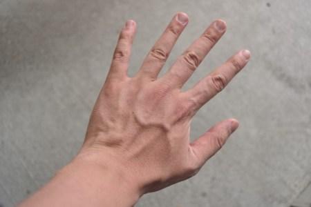 爪周囲炎の原因や何科を受診するかと治し方【自然治癒する?】