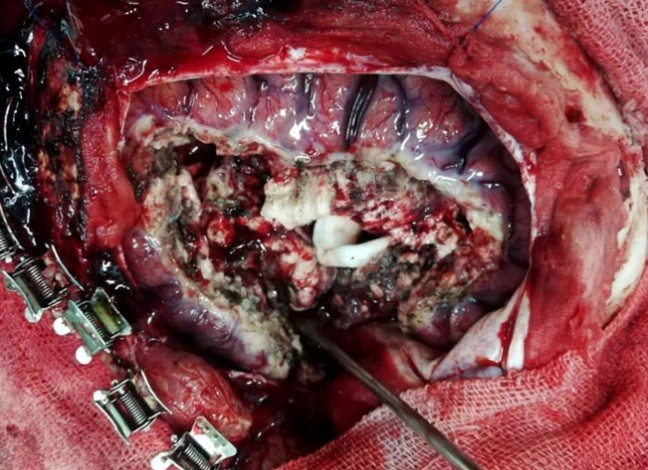 Rasmussen's Encephalitis surgery