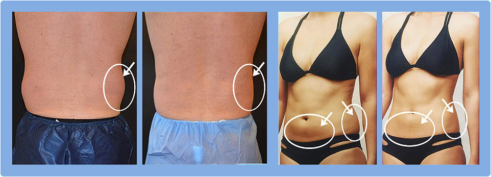 Fat Cell Killer System Before and After