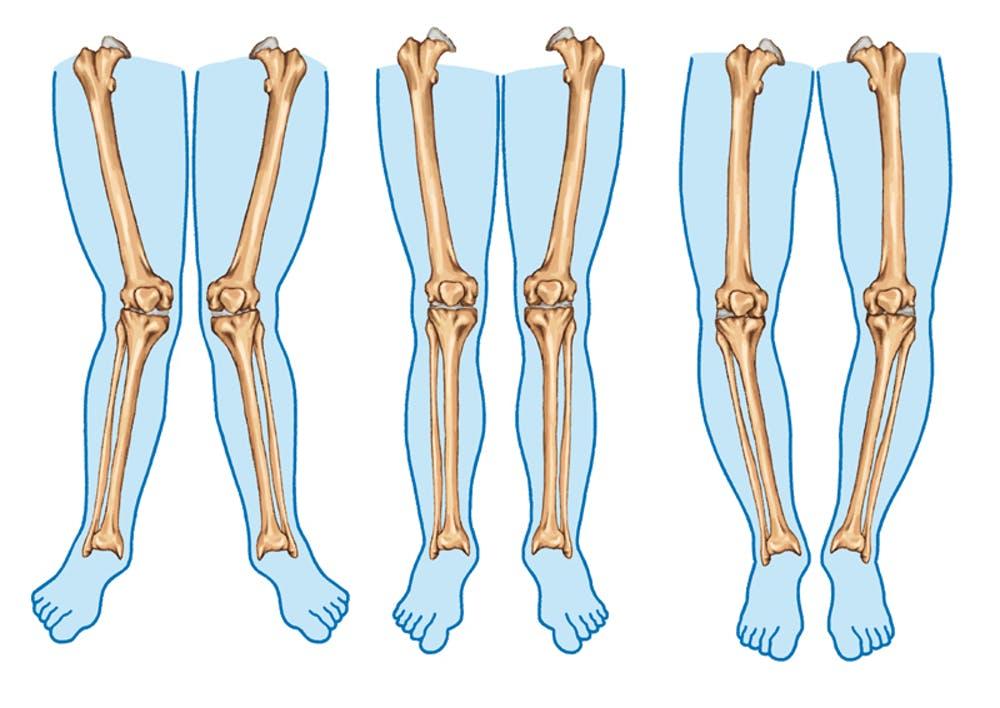 bow legs
