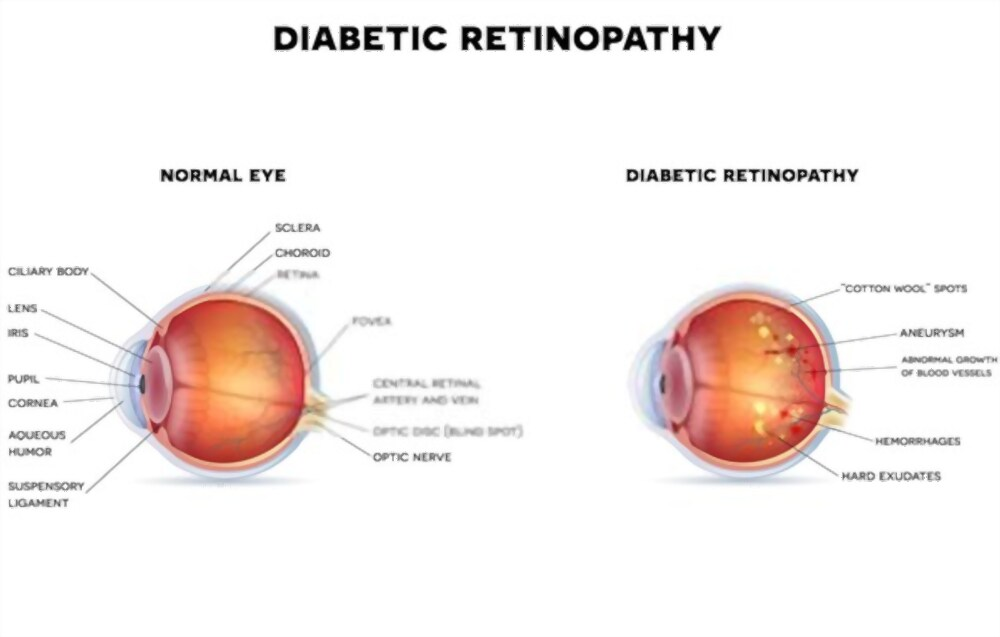 Treatments For Diabetic retinopathy