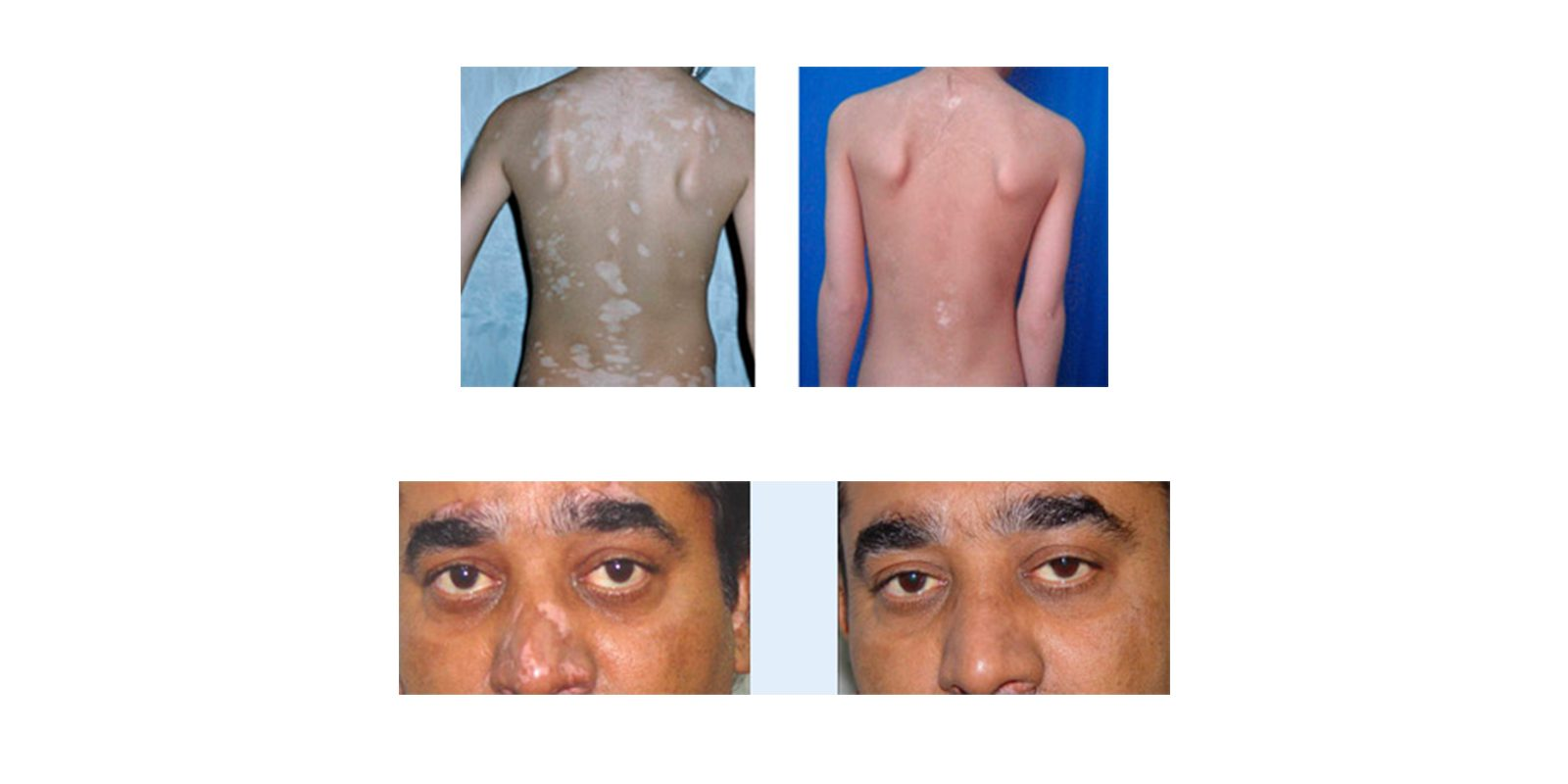 natural vitiligo treatment