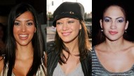Celebs-before-plastic-surgery