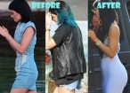 Kylie-Jenner-Plastic-Surgery-Butt-Implant