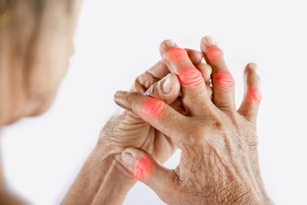 لماذا أعاني من مفاصل حمراء - Quiragra أو السقوط من اليدين