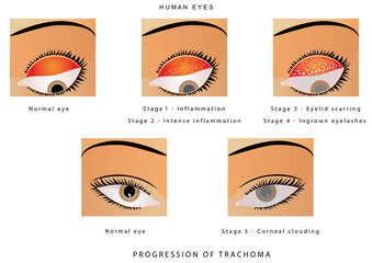 trachoma progression