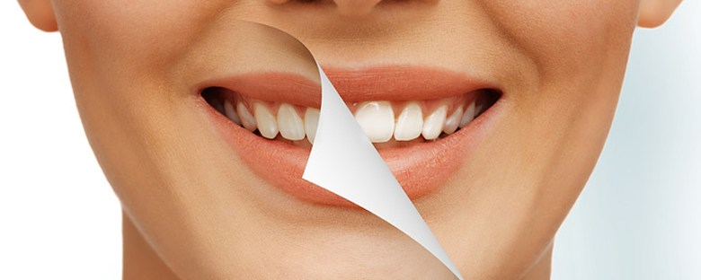 at-home-vs-professional-teeth-whitening-pict