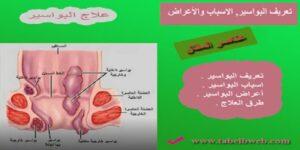 تعريف البواسير والاسباب والاعراض