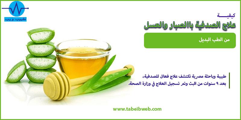 علاج الصدفية بالصبار والعسل