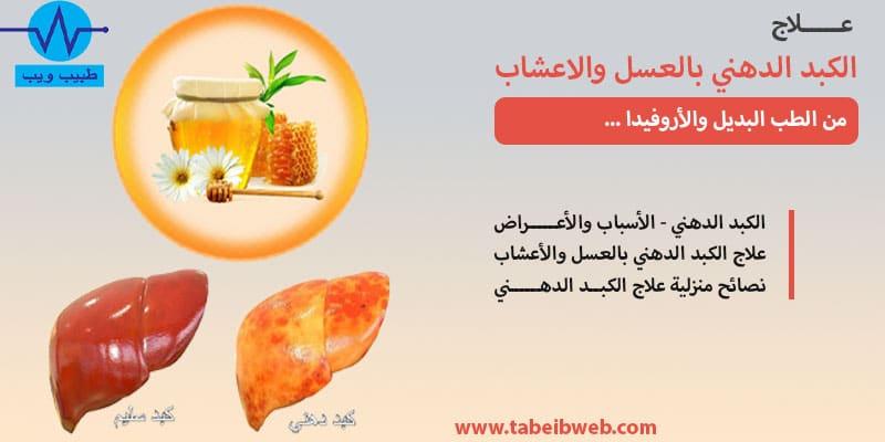 علاج الكبد الدهني بالعسل والاعشاب