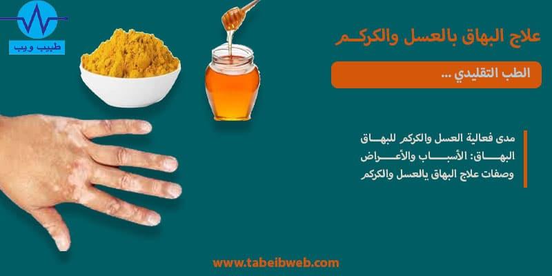 علاج البهاق بالعسل والكركم