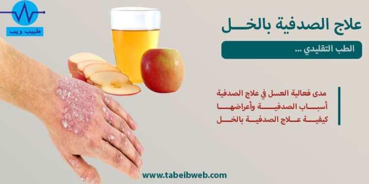 علاج الصدفية بالخل