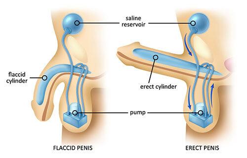 tablete-za-erekcijo