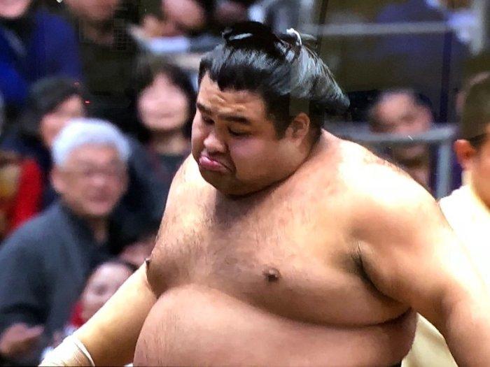 Takayasu-Shrugs