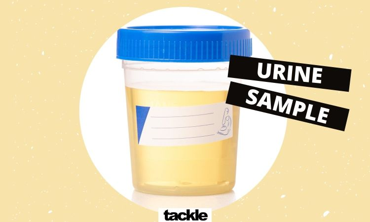 Give a urine sample at Sexual health clinic