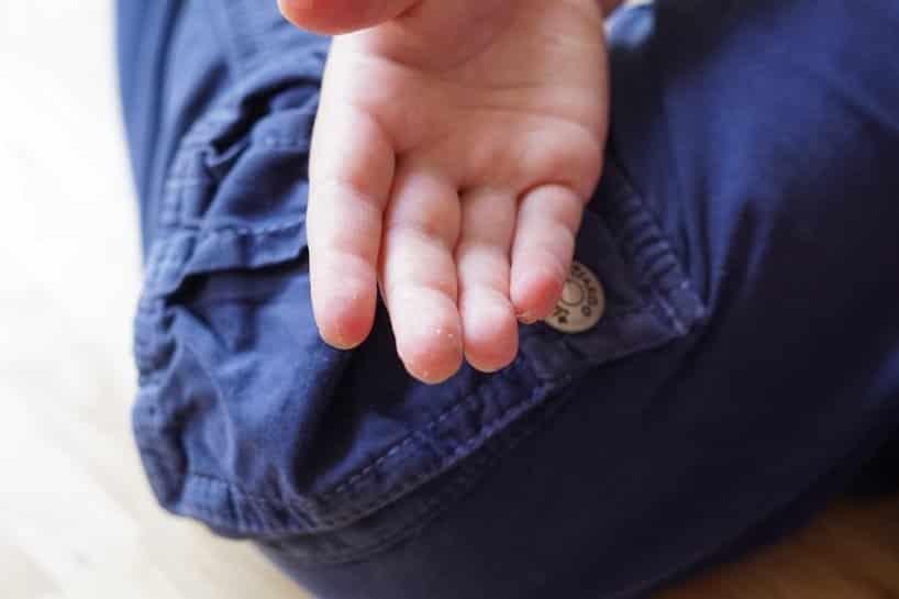 Hand-Fuß-Mund-Krankheit-Symtome