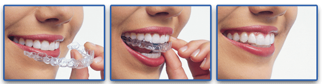 Invisalign-dental-service-at-tailored-teeth-dental-and-cosmetics-sydney-lady-putting-on