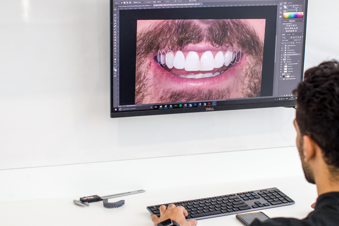Tailored-Teeth-Dentist-in-Burwood-Sydney-digital-smile-creation