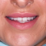Composite-veneers-for-Courtney-Kaaye-by-Tailored-Teeth-Dental-and-Cosmetics-1