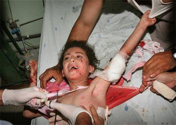 gaza_ataque_350gRITO pALESTINO NIÑO