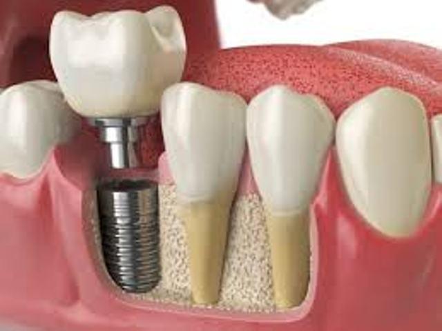 زراعة الأسنان بالليزر في تركيا ا Laser Teeth Implants تكلفة زراعة الاسنان بالليزر